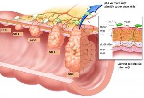 Nguyên nhân gây bệnh ung thư đại tràng bạn không nên bỏ qua