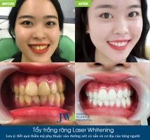Địa chỉ tẩy trắng răng uy tín chất lượng ở Đà Nẵng