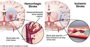 Bệnh thường gặp ở người cao tuổi và cách phòng tránh