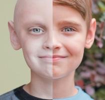 Bệnh ung thư phổ biến nhất hiện nay bạn nên biết