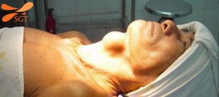 Bệnh viện chữa bướu cổ tốt nhất Việt Nam hiện nay