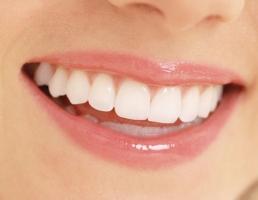 Bí quyết làm trắng răng hiệu quả nhất