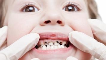 Cách chữa sâu răng đơn giản và triệt để nhất