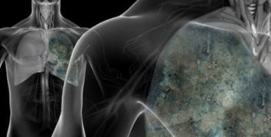 Cách đơn giản phòng ngừa bệnh ung thư phổi