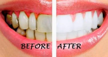 Cách làm đẹp răng tự nhiên, trắng sáng hiệu quả nhất