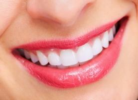 Cách làm trắng răng đơn giản tại nhà