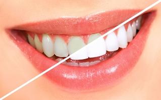 Cách làm trắng răng hiệu quả nhất tại nhà với Baking soda