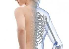 Cách phòng bệnh loãng xương hiệu quả