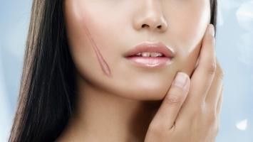 Cách trị sẹo hiệu quả nhất bằng phương pháp tự nhiên