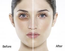 Cách trị thâm quầng mắt hiệu quả