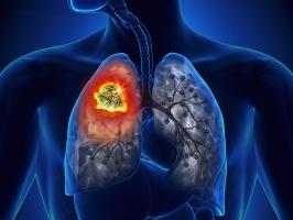 Dấu hiệu nhận biết ung thư phổi giai đoạn đầu