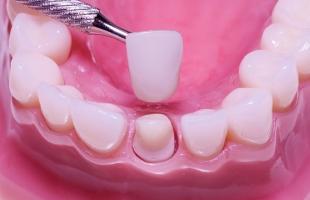 địa chỉ bọc răng sứ đẹp và an toàn nhất tại Hà Nội