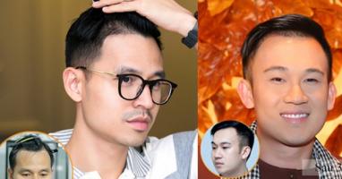 địa chỉ cấy tóc uy tín nhất tại Hà Nội