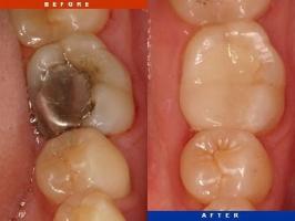 địa chỉ điều trị viêm tủy răng hiệu quả hàng đầu tại Tp HCM
