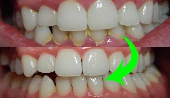 địa chỉ lấy cao răng uy tín hàng đầu tại Tp HCM