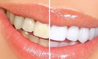 địa chỉ tẩy trắng răng hiệu quả, an toàn nhất tại Tp HCM