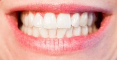 địa chỉ trồng răng Implant tốt nhất tại Hà Nội