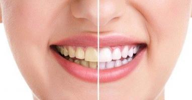 Cách lấy cao răng tại nhà hiệu quả nhất