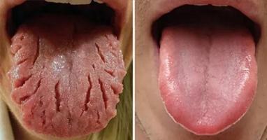Màu lưỡi bất thường báo hiệu cơ thể bạn mắc bệnh lý từ lâu