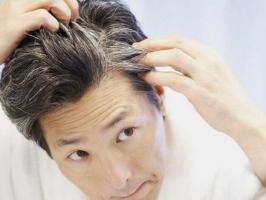Nguyên nhân khiến đầu bạn có nhiều tóc bạc