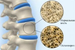Nhóm thực phẩm giúp ngăn ngừa loãng xương hiệu quả