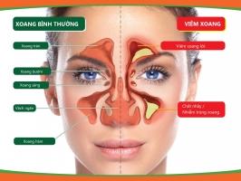 Nguyên liệu trị viêm xoang hiệu quả tại nhà từ thiên nhiên
