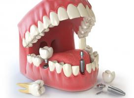 Top 3  Phương pháp trồng răng an toàn và hiệu quả nhất hiện nay