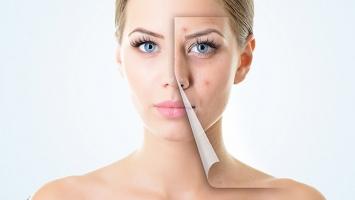 Sai lầm khi dưỡng da khiến da mãi không thể đẹp lên