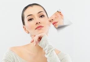 Sản phẩm kem điều trị sẹo thâm do mụn, sẹo bỏng và rạn da tốt nhất
