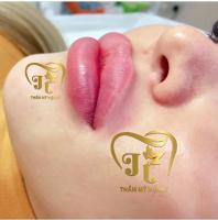 Địa chỉ tiêm filler - botox uy tín và chất lượng nhất Cần Thơ