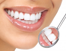 Thói quen gây hại cho răng của bạn