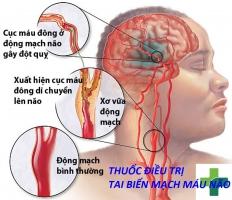 Thuốc điều trị tai biến mạch máu não hiệu quả nhất