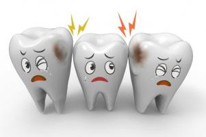 Kem đánh răng đặc trị ngừa sâu răng hiệu quả nhất hiện nay