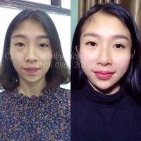 Top 5 Địa điểm tiêm filler- botox uy tín tại Hà Nội