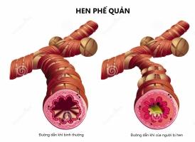 Dấu hiệu của bệnh hen suyễn bạn cần chú ý