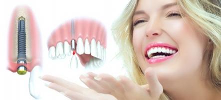 Trung tâm răng hàm mặt uy tín nhất tại Đà Nẵng
