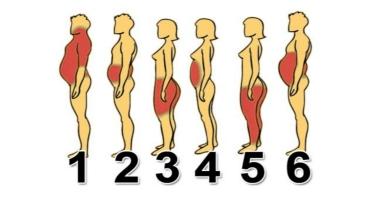 Vị trí dễ tích mỡ trên cơ thể và cách giải quyết