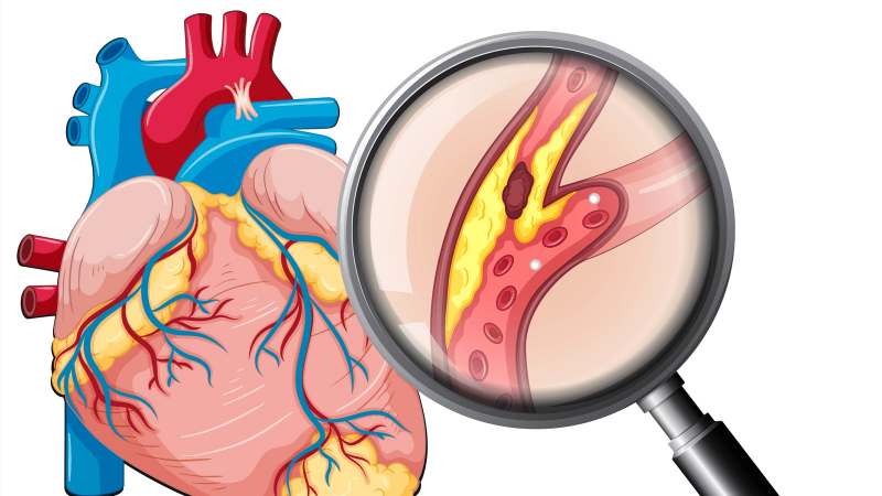19-21 giờ: Thời gian giải độc màng ngoài tim