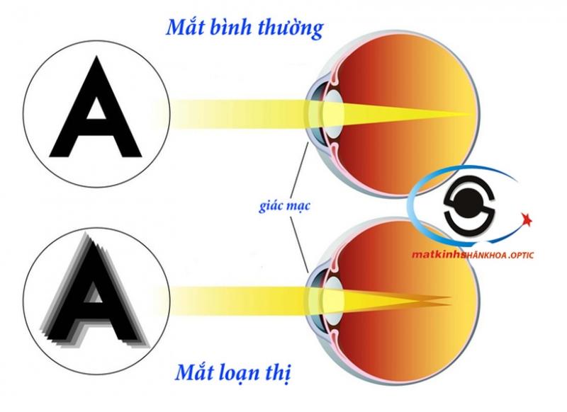 Loạn thị làm chúng ta nhìn mờ ở mọi khoảng cách