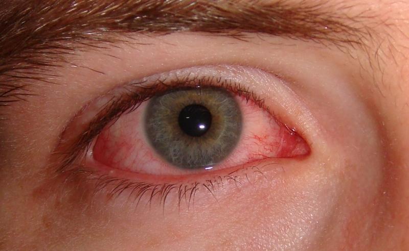 Đau mắt đỏ là bệnh theo mùa