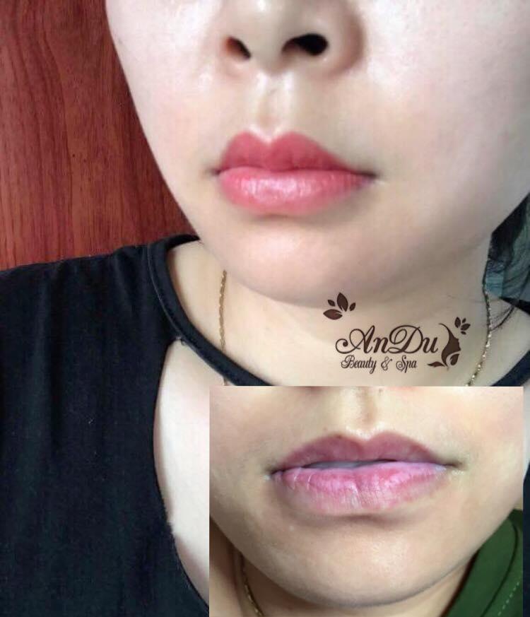Andu Beauty & Spa - Hạ Long