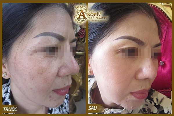 Kết quả trước và sau khi điều trị nám của khách hàng