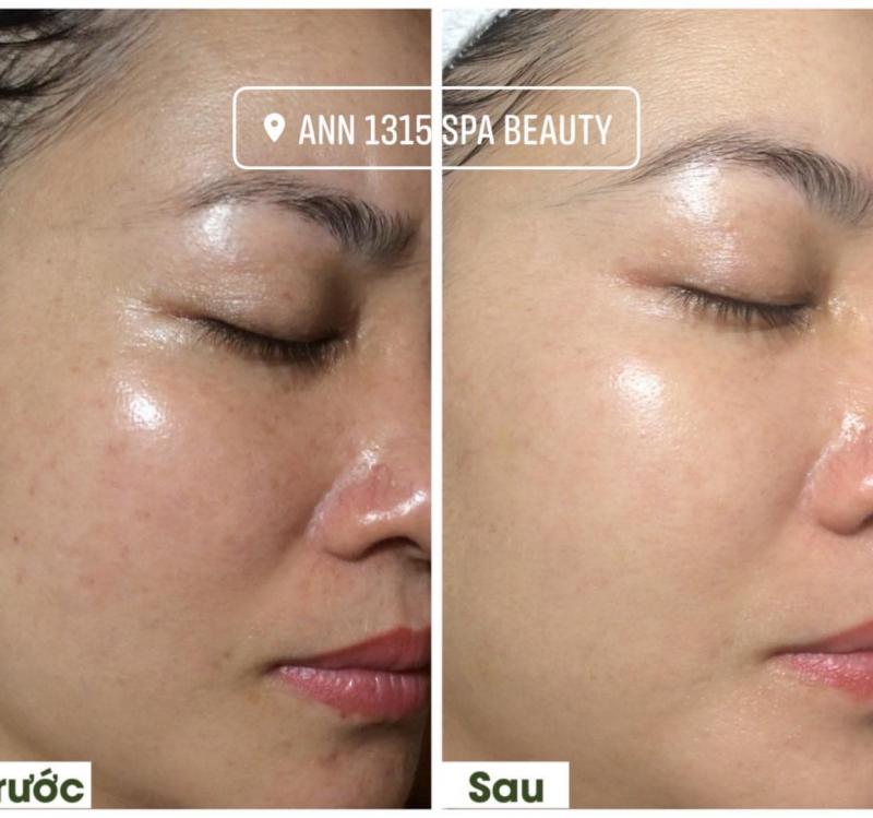 Ann 1315 Spa Beauty