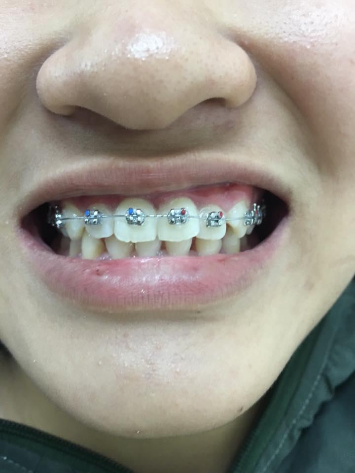 Bác Sĩ Toàn Niềng Răng