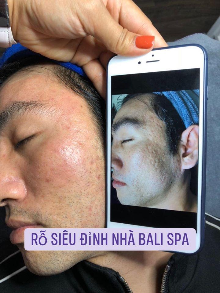 Bali Spa & Clinic
