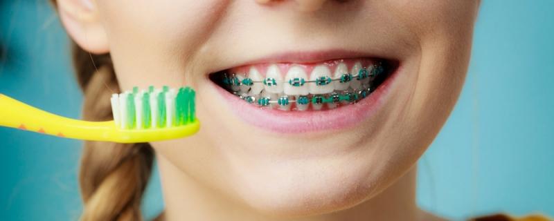 Top 7 bàn chải đánh răng cho răng niềng tốt nhất hiện nay