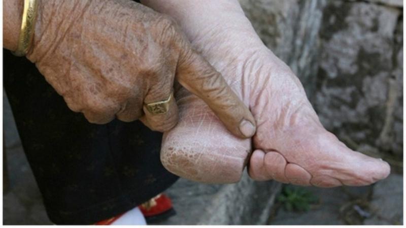 Bàn chân gót sen tượng trưng cho đức hạnh và phẩm giá của người phụ nữ phong kiến Trung Quốc