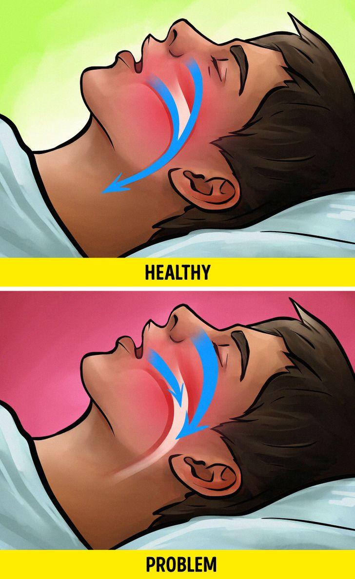 Bạn có thể mắc chứng ngưng thở khi ngủ (Obstructive Sleep Apnea – OSA)