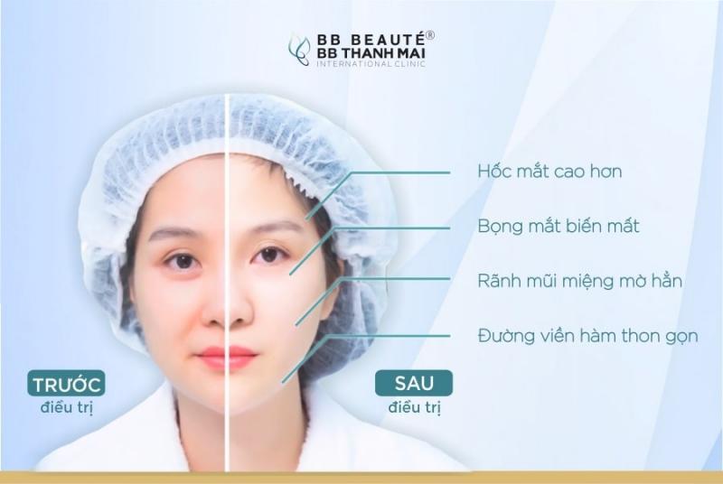 BB Beauté - BB Thanh Mai