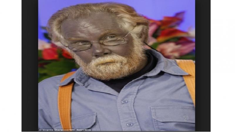 Paul Karason bị bệnh Argyria khiến làn da của ông có màu xanh